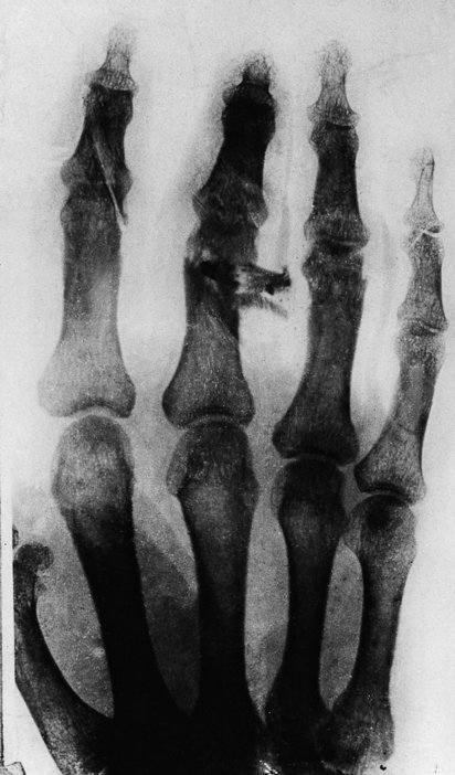 X-ray of Munch's hand