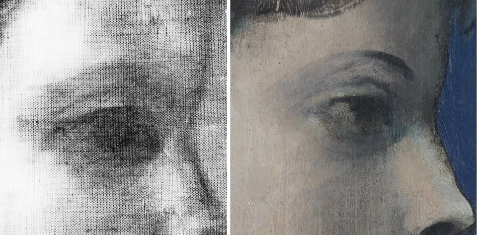 Detail of X-radiograph showing the boy's eye and detail of the same area showing the girl's eye