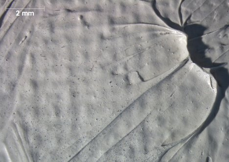 Micrograph of the earlobe