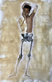 painting of a young boy with an exposed skeleton from the hips down