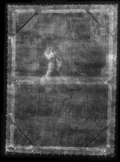 Fig.2 X-radiograph of Boy Playing a Jew's Harp c.1648