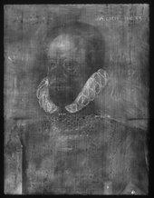 Fig.2 X-radiograph of Sir Thomas Kytson