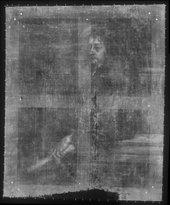 Fig.2 X-radiograph of Frans Mercurius van Helmont