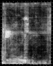 Fig.2 X-radiograph of Cornelia Veth