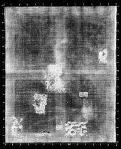 Fig.3 X-radiograph of Apolonius Veth