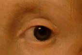 Fig.7 Macro-photograph of the sitter's left eye, showing initial, red lake-based delineation of the eyelid, iris and pupil