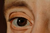 Fig.7  Close-up of Sir Thomas's right eye, showing blue paint and the underlying pentimento of the original position of the iris and pupil
