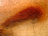 Fig.9 Detail of the sitter's left nostril at x8 magnification