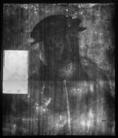 Fig.2 X-radiograph of An Unknown Man in a Black Cap