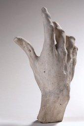 A plaster cast hand