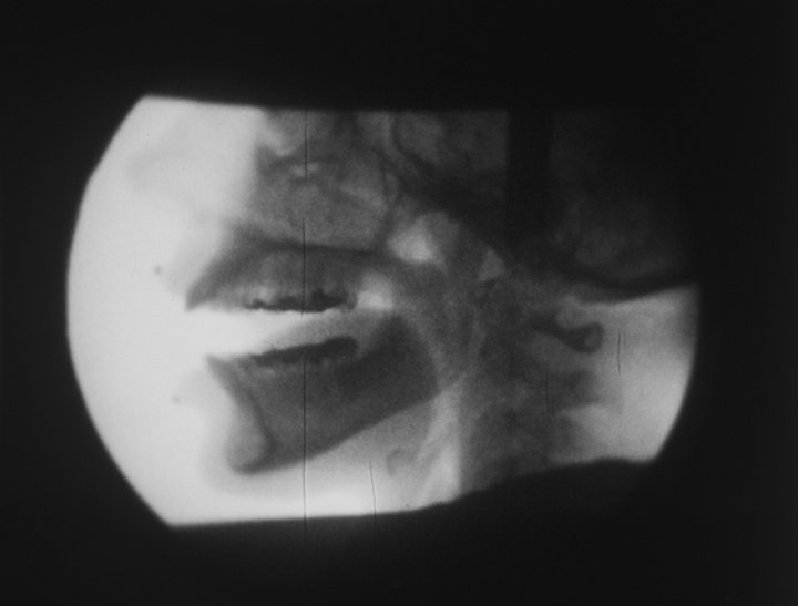 Ana Mendieta X-ray c.1975, film still. Copyright The Estate of Ana Mendieta Collection, L.L.C. Courtesy Galerie Lelong & Co. and Alison Jacques Gallery